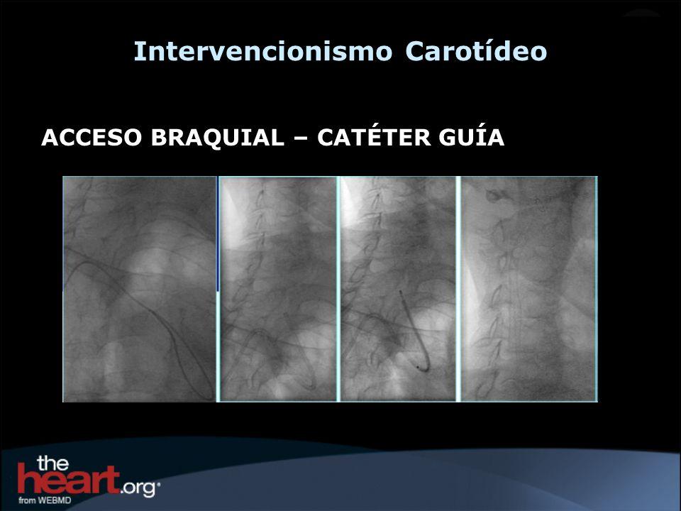Intervencionismo Carotídeo ACCESO BRAQUIAL – CATÉTER GUÍA
