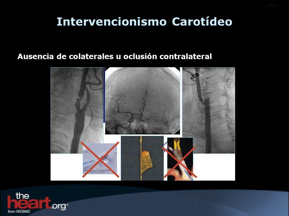 A los Cirujanos se les requería haber realizado 25 CEA en el último año A los Intervencionistas se les requería una experiencia pequeña: 12 CAS o 35 angioplastias de los vasos del cuello, incluyendo 5 CAS o 2 CAS con la asistencia de un proctor.