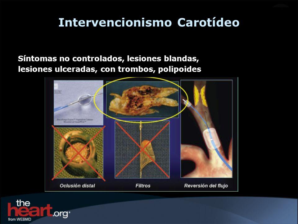 Intervencionismo Carotídeo Síntomas no controlados, lesiones blandas, lesiones ulceradas, con trombos, polipoides