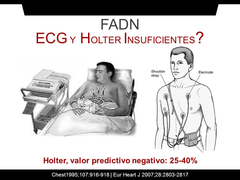FADN ECG Y H OLTER I NSUFICIENTES ? Chest1995;107:916-918 | Eur Heart J 2007;28:2803-2817 Holter, valor predictivo negativo: 25-40%