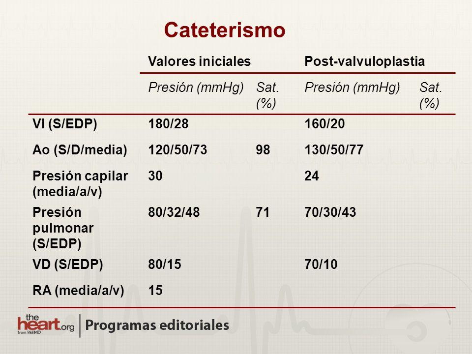 Cateterismo Valores inicialesPost-valvuloplastia Presión (mmHg)Sat. (%) Presión (mmHg)Sat. (%) VI (S/EDP)180/28160/20 Ao (S/D/media)120/50/7398130/50/