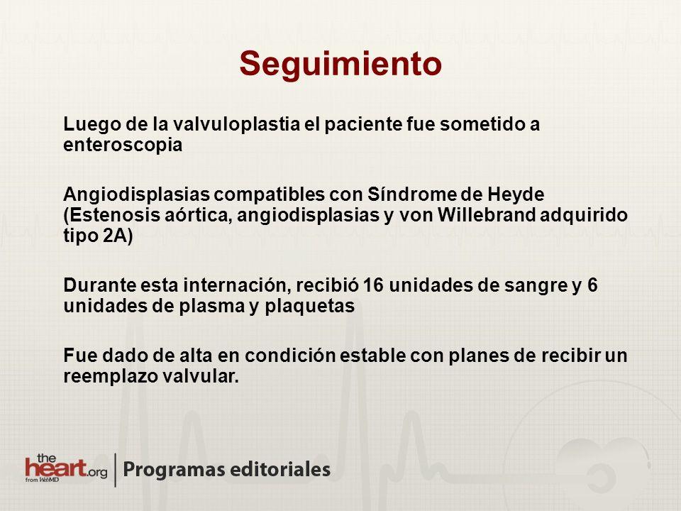 Seguimiento Luego de la valvuloplastia el paciente fue sometido a enteroscopia Angiodisplasias compatibles con Síndrome de Heyde (Estenosis aórtica, a