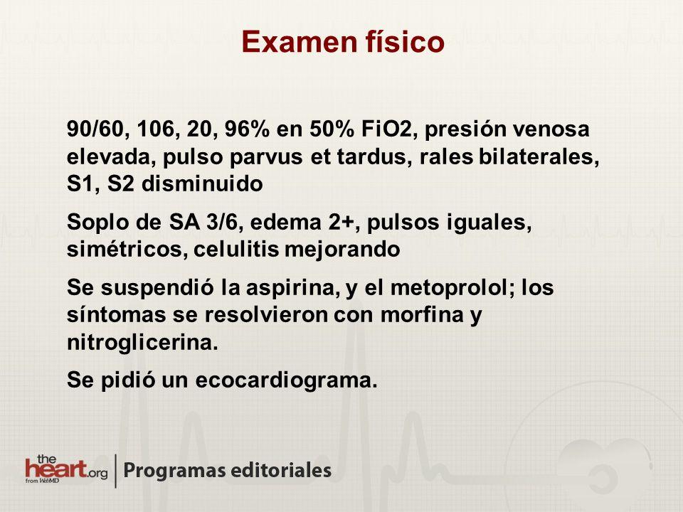 90/60, 106, 20, 96% en 50% FiO2, presión venosa elevada, pulso parvus et tardus, rales bilaterales, S1, S2 disminuido Soplo de SA 3/6, edema 2+, pulso