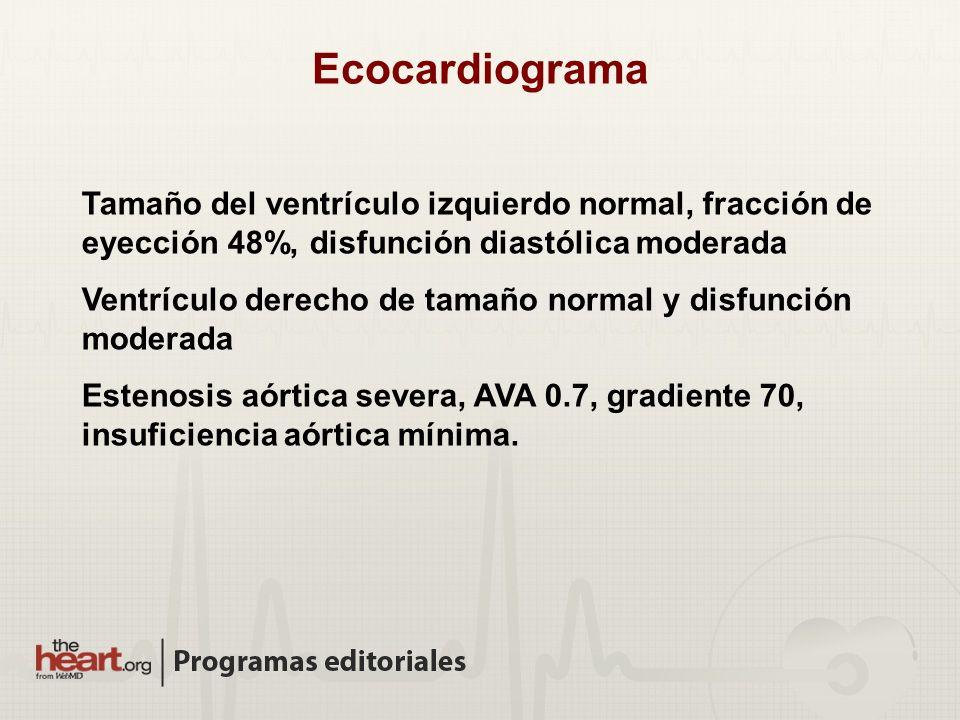 Ecocardiograma Tamaño del ventrículo izquierdo normal, fracción de eyección 48%, disfunción diastólica moderada Ventrículo derecho de tamaño normal y