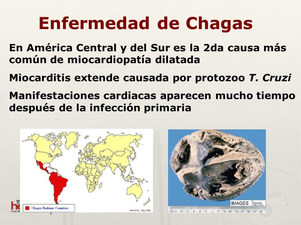 Enfermedad de Chagas En América Central y del Sur es la 2da causa más común de miocardiopatía dilatada Miocarditis extende causada por protozoo T. Cru