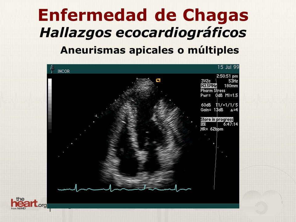 Aneurismas apicales o múltiples Enfermedad de Chagas Hallazgos ecocardiográficos