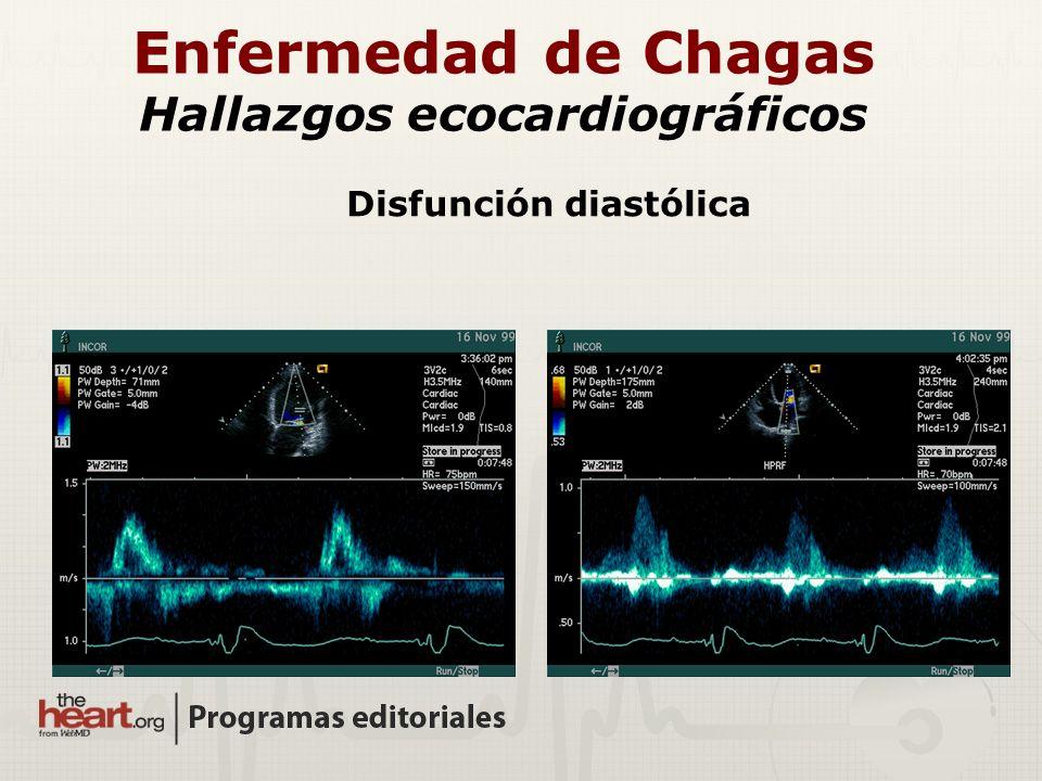 Disfunción diastólica Enfermedad de Chagas Hallazgos ecocardiográficos