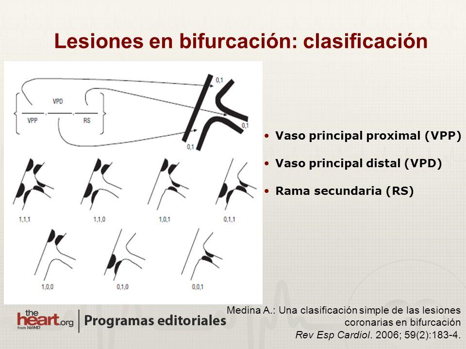 Vaso principal proximal (VPP) Vaso principal distal (VPD) Rama secundaria (RS) Medina A.: Una clasificación simple de las lesiones coronarias en bifur