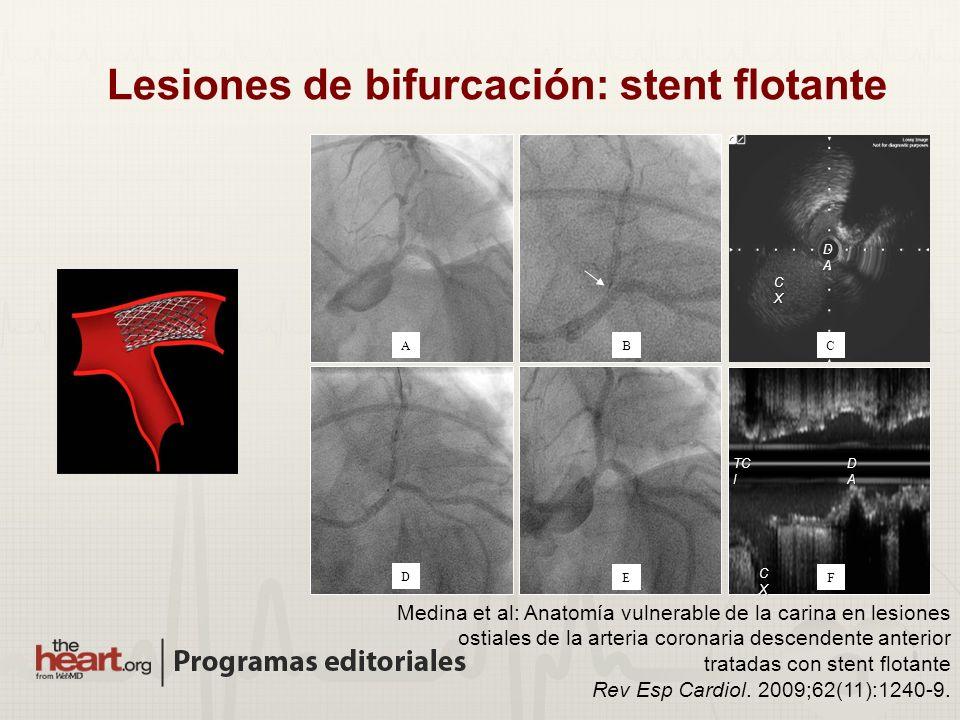 DADADADA CXCXCXCX DADA AB FE C D CXCXCXCX TC I Medina et al: Anatomía vulnerable de la carina en lesiones ostiales de la arteria coronaria descendente