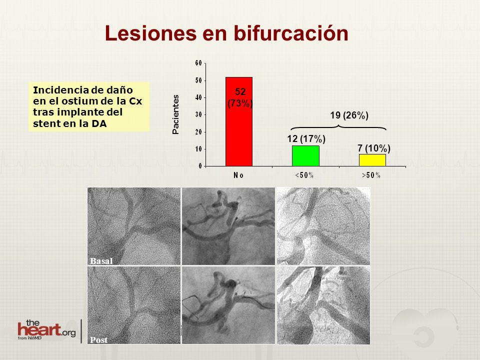 Basal Post Incidencia de daño en el ostium de la Cx tras implante del stent en la DA 52 (73%) 12 (17%) 7 (10%) Pacientes 19 (26%) Lesiones en bifurcac