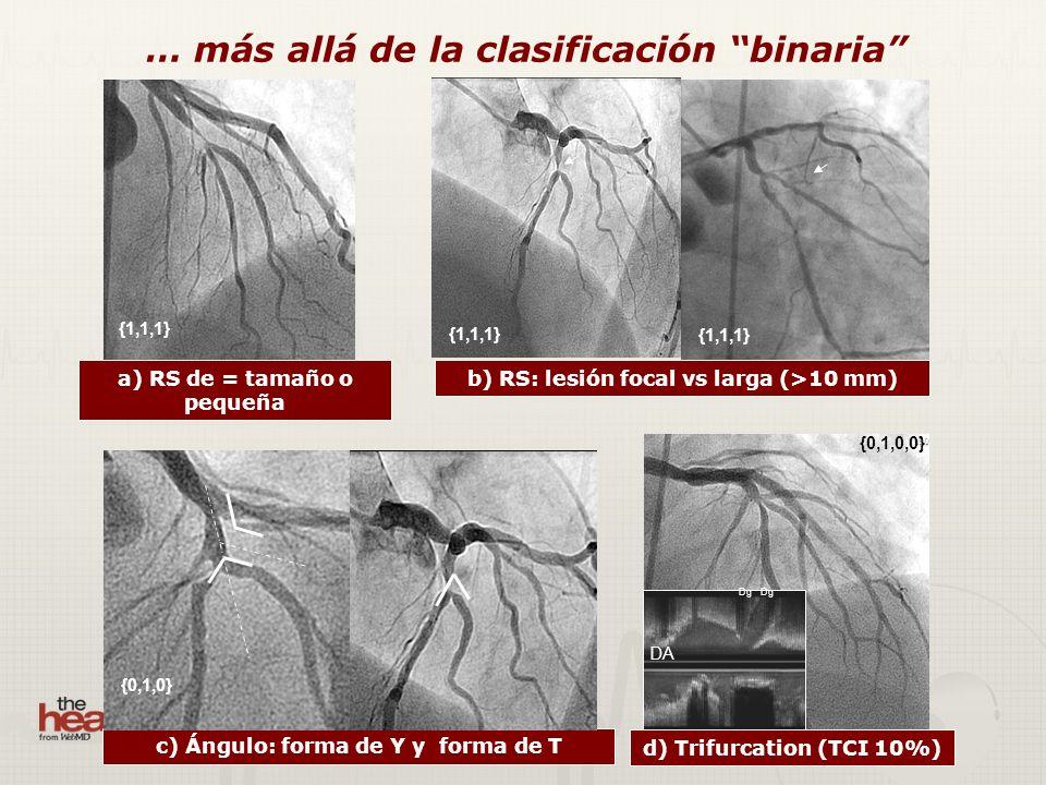 … más allá de la clasificación binaria b) RS: lesión focal vs larga (>10 mm) {0,1,0,0} {1,1,1} d) Trifurcation (TCI 10%) a) RS de = tamaño o pequeña {