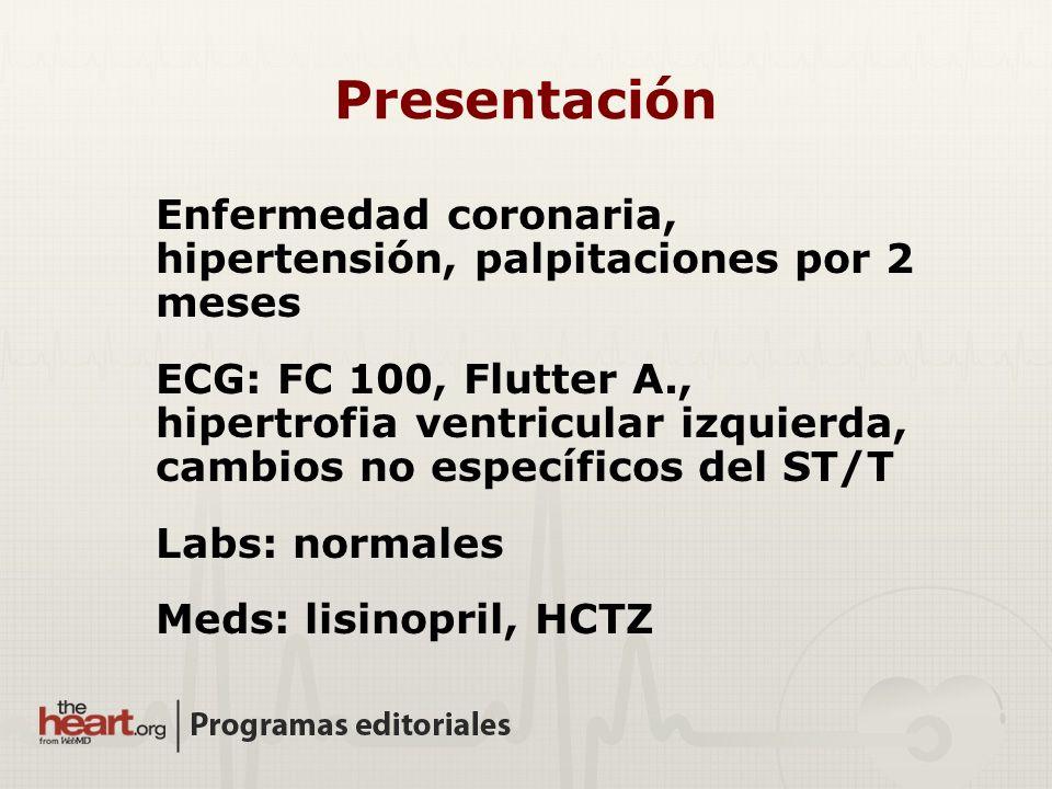 Presentación Enfermedad coronaria, hipertensión, palpitaciones por 2 meses ECG: FC 100, Flutter A., hipertrofia ventricular izquierda, cambios no espe