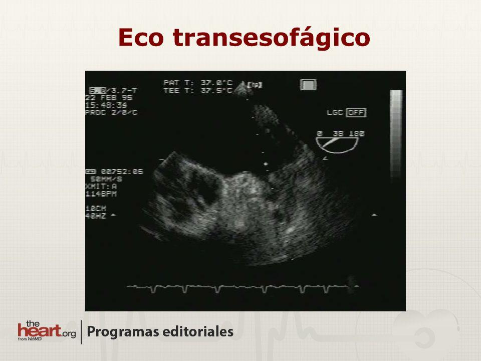 Eco transesofágico