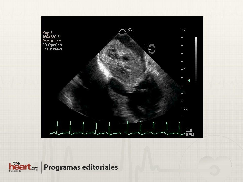 Tumor cardiaco primario más común 85% localizados en la AI Usualmente se originan en el septo IA Benignos biológicamente Síncope, embolismo sistémico o insuficiencia cardiaca Diagnóstico: mixoma auricular