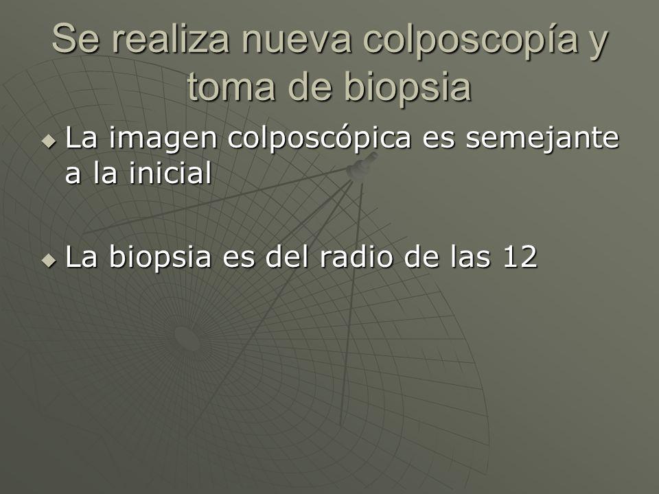Se realiza nueva colposcopía y toma de biopsia La imagen colposcópica es semejante a la inicial La imagen colposcópica es semejante a la inicial La bi