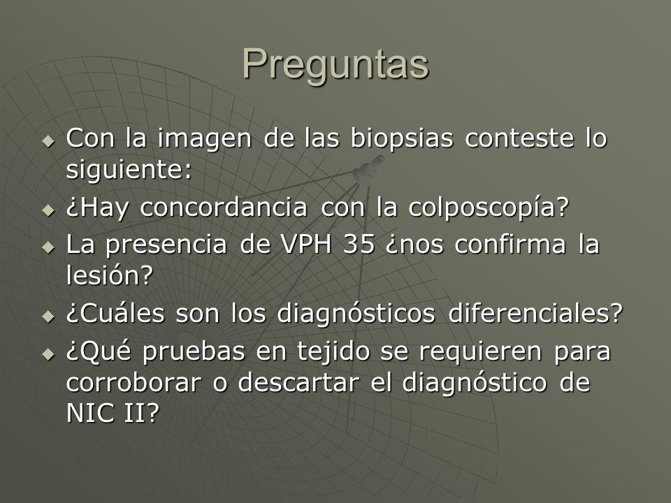 Preguntas Con la imagen de las biopsias conteste lo siguiente: Con la imagen de las biopsias conteste lo siguiente: ¿Hay concordancia con la colposcop