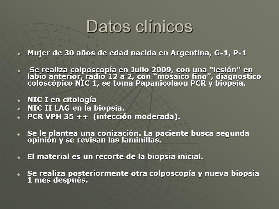 Datos clínicos Mujer de 30 años de edad nacida en Argentina, G-1, P-1 Mujer de 30 años de edad nacida en Argentina, G-1, P-1 Se realiza colposcopía en