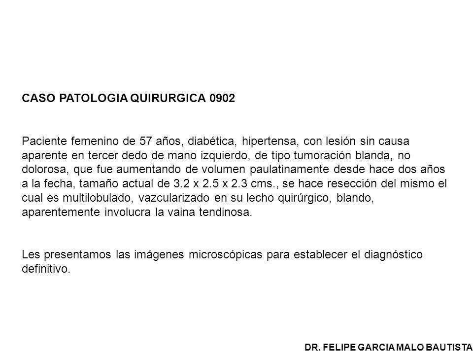 CASO PATOLOGIA QUIRURGICA 0902 Paciente femenino de 57 años, diabética, hipertensa, con lesión sin causa aparente en tercer dedo de mano izquierdo, de tipo tumoración blanda, no dolorosa, que fue aumentando de volumen paulatinamente desde hace dos años a la fecha, tamaño actual de 3.2 x 2.5 x 2.3 cms., se hace resección del mismo el cual es multilobulado, vazcularizado en su lecho quirúrgico, blando, aparentemente involucra la vaina tendinosa.