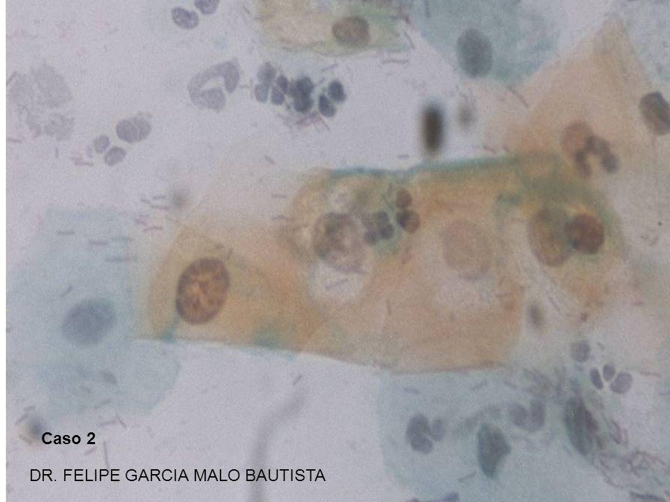 Caso 3 DR. FELIPE GARCIA MALO BAUTISTA