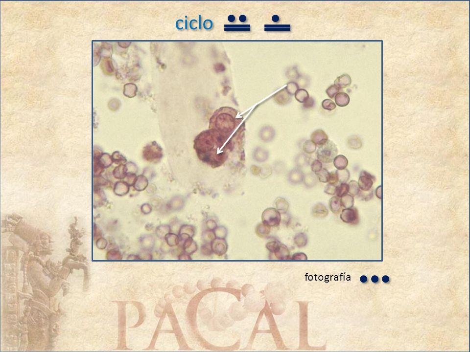 ciclo Conteste el inciso correcto (uno por pregunta) tomando en cuenta las imágenes en las tres fotografías: 1.Las células señaladas en la fotografía 2 y las contenidas en el cilindro de la fotografía 3 son: a.Macrófagos b.Células transicionales c.Células de túbulos renales d.Células prostáticas 2.Las imágenes en las fotografías demuestran una enfermedad de tipo: a.Inmunológica b.Obstructiva c.Túbulo-intersticial d.Glomerular Conteste el inciso correcto (uno por pregunta) tomando en cuenta las imágenes en las tres fotografías: 1.Las células señaladas en la fotografía 2 y las contenidas en el cilindro de la fotografía 3 son: a.Macrófagos b.Células transicionales c.Células de túbulos renales d.Células prostáticas 2.Las imágenes en las fotografías demuestran una enfermedad de tipo: a.Inmunológica b.Obstructiva c.Túbulo-intersticial d.Glomerular