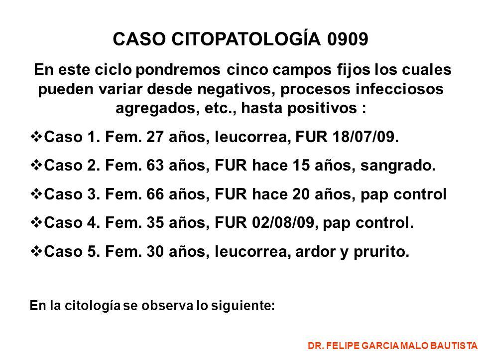 CASO CITOPATOLOGÍA 0909 En este ciclo pondremos cinco campos fijos los cuales pueden variar desde negativos, procesos infecciosos agregados, etc., hasta positivos : Caso 1.