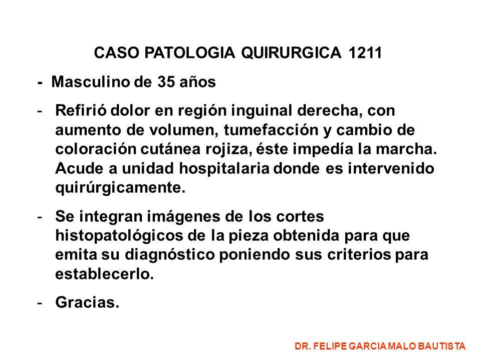 CASO PATOLOGIA QUIRURGICA 1211 - Masculino de 35 años -Refirió dolor en región inguinal derecha, con aumento de volumen, tumefacción y cambio de color