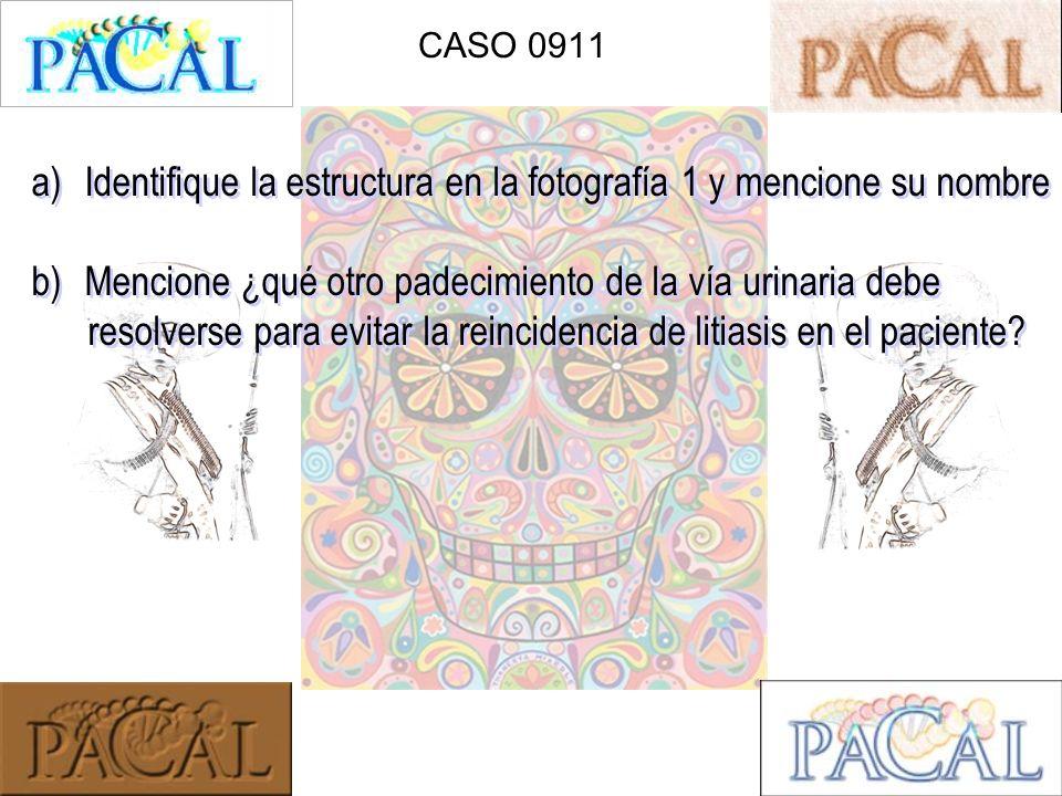 CASO 0911 a)Identifique la estructura en la fotografía 1 y mencione su nombre b)Mencione ¿qué otro padecimiento de la vía urinaria debe resolverse par