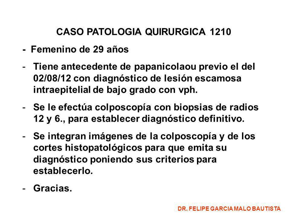 CASO PATOLOGIA QUIRURGICA 1210 - Femenino de 29 años -Tiene antecedente de papanicolaou previo el del 02/08/12 con diagnóstico de lesión escamosa intr