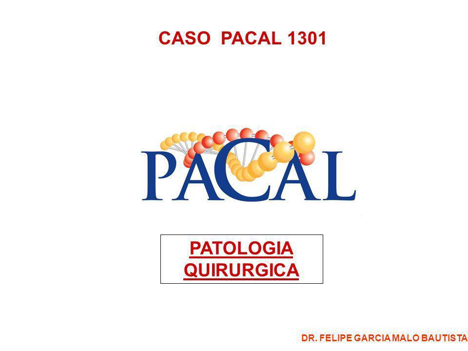 CASO PATOLOGIA 1301 -Femenino de 27 años -Se trata de paciente que ingresa con dolor abdominal en fosa iliaca izquierda, progresivo, por lo que se interviene de laparotomía exploradora obteniendose el ovario izquierdo torcido, hemorrágico, tumefacto, de 10 cms.
