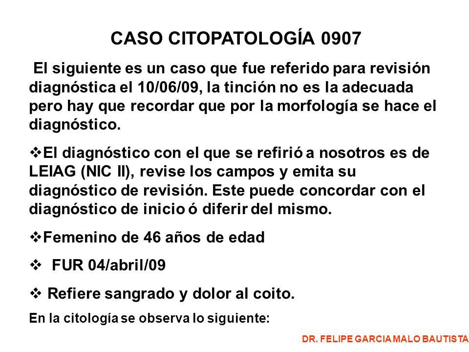 CASO CITOPATOLOGÍA 0907 El siguiente es un caso que fue referido para revisión diagnóstica el 10/06/09, la tinción no es la adecuada pero hay que recordar que por la morfología se hace el diagnóstico.
