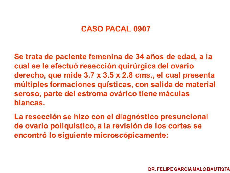 CASO PACAL 0907 Se trata de paciente femenina de 34 años de edad, a la cual se le efectuó resección quirúrgica del ovario derecho, que mide 3.7 x 3.5 x 2.8 cms., el cual presenta múltiples formaciones quísticas, con salida de material seroso, parte del estroma ovárico tiene máculas blancas.