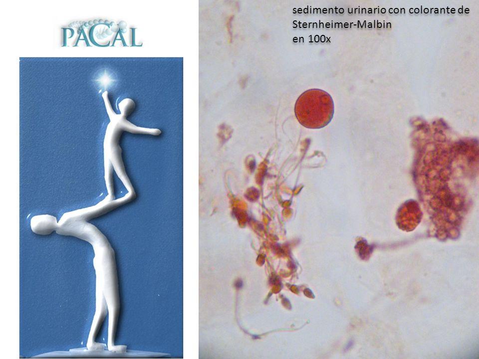 sedimento urinario con colorante de Sternheimer-Malbin en 100x sedimento urinario con colorante de Sternheimer-Malbin en 100x