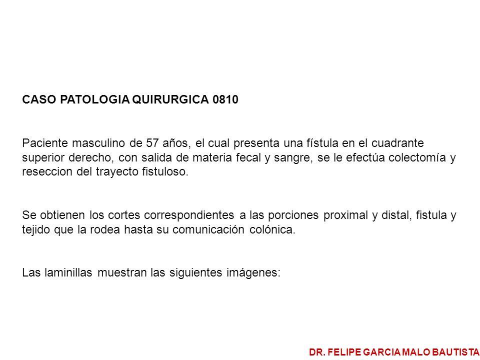 CASO PATOLOGIA QUIRURGICA 0810 Paciente masculino de 57 años, el cual presenta una fístula en el cuadrante superior derecho, con salida de materia fec