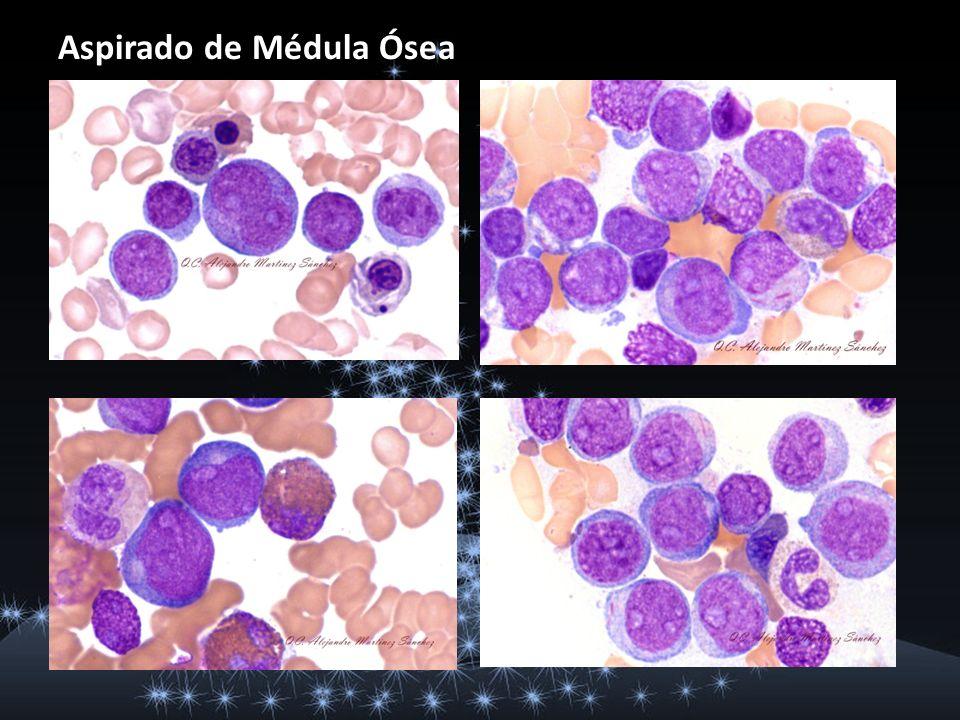 Tinción citoquímica de Mieloperoxidasa