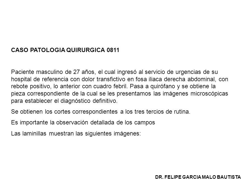 CASO PATOLOGIA QUIRURGICA 0811 Paciente masculino de 27 años, el cual ingresó al servicio de urgencias de su hospital de referencia con dolor transfic
