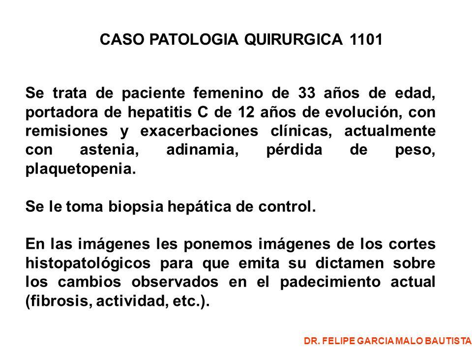CASO PATOLOGIA QUIRURGICA 1101 Se trata de paciente femenino de 33 años de edad, portadora de hepatitis C de 12 años de evolución, con remisiones y exacerbaciones clínicas, actualmente con astenia, adinamia, pérdida de peso, plaquetopenia.