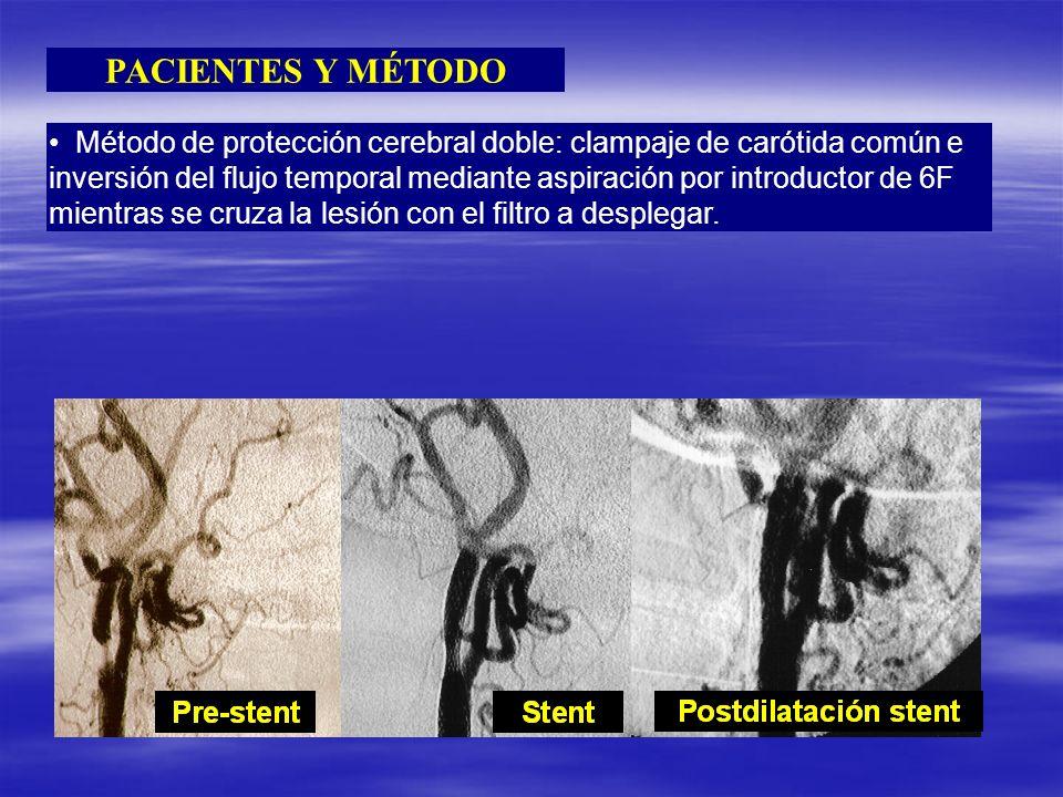 PACIENTES Y MÉTODO Método de protección cerebral doble: clampaje de carótida común e inversión del flujo temporal mediante aspiración por introductor