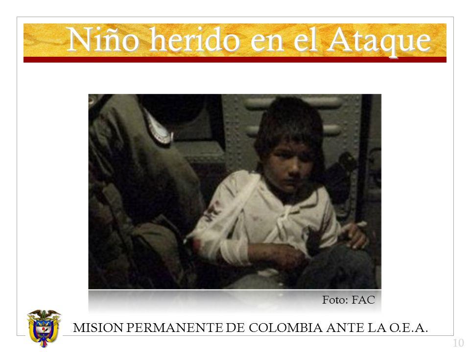 MISION PERMANENTE DE COLOMBIA ANTE LA O.E.A. Niño herido en el Ataque Foto: FAC 10