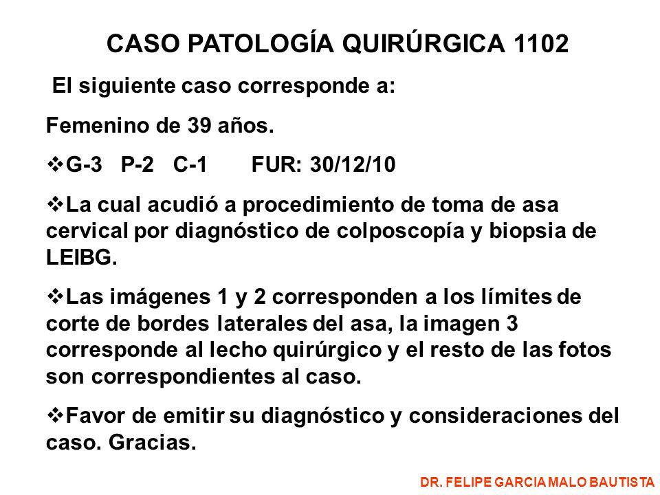 CASO PATOLOGÍA QUIRÚRGICA 1102 El siguiente caso corresponde a: Femenino de 39 años.