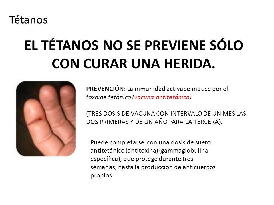EL TÉTANOS NO SE PREVIENE SÓLO CON CURAR UNA HERIDA. Tétanos PREVENCIÓN: La inmunidad activa se induce por el toxoide tetánico (vacuna antitetánica) (
