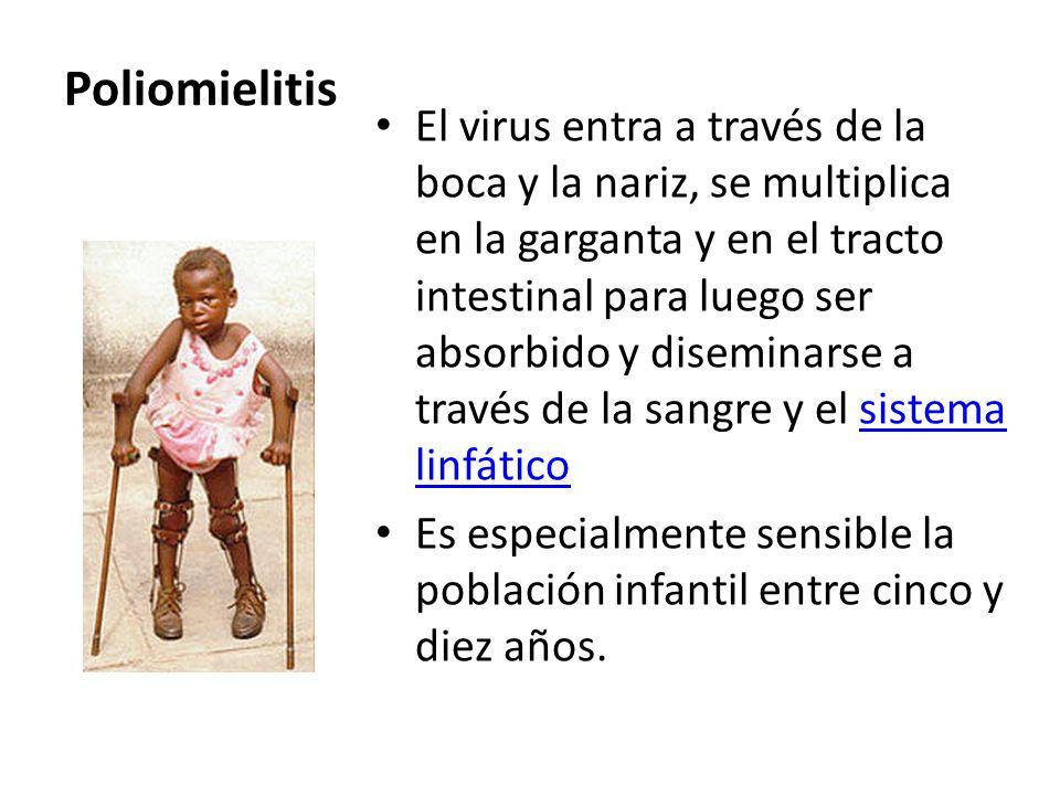 Poliomielitis El virus entra a través de la boca y la nariz, se multiplica en la garganta y en el tracto intestinal para luego ser absorbido y disemin