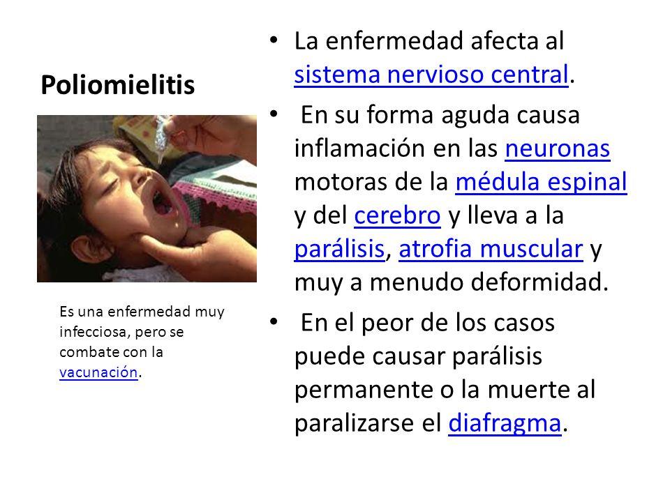 Poliomielitis La enfermedad afecta al sistema nervioso central. sistema nervioso central En su forma aguda causa inflamación en las neuronas motoras d