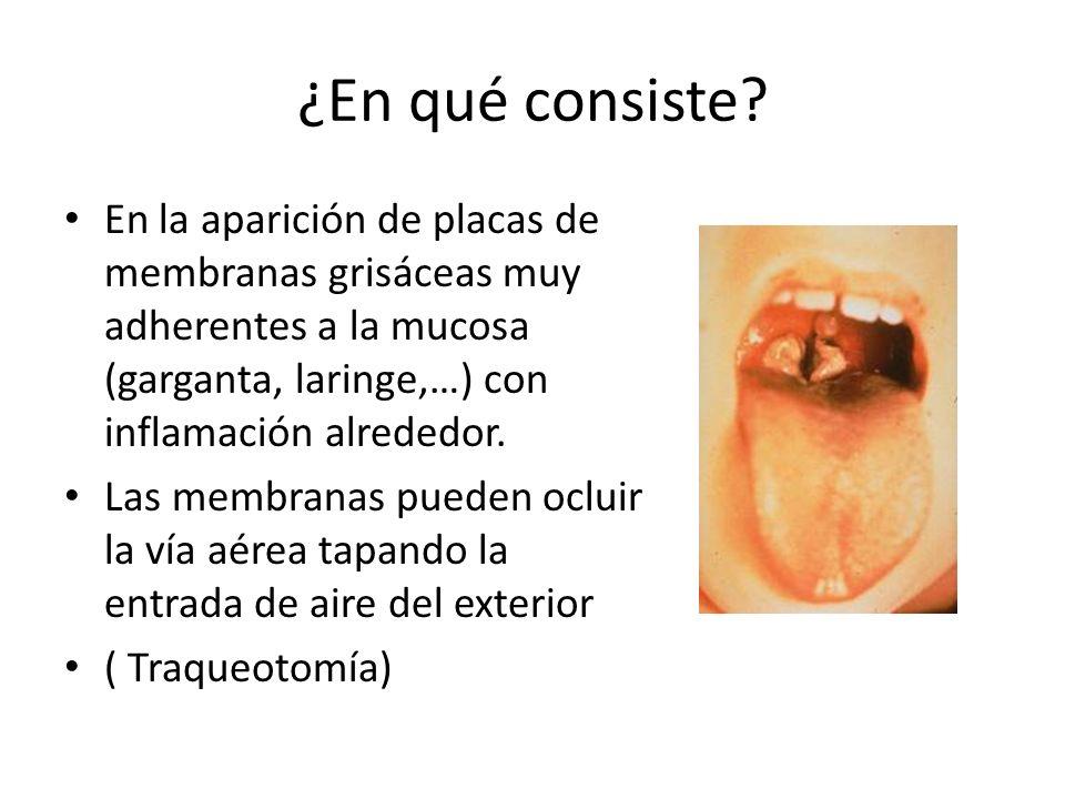 ¿En qué consiste? En la aparición de placas de membranas grisáceas muy adherentes a la mucosa (garganta, laringe,…) con inflamación alrededor. Las mem