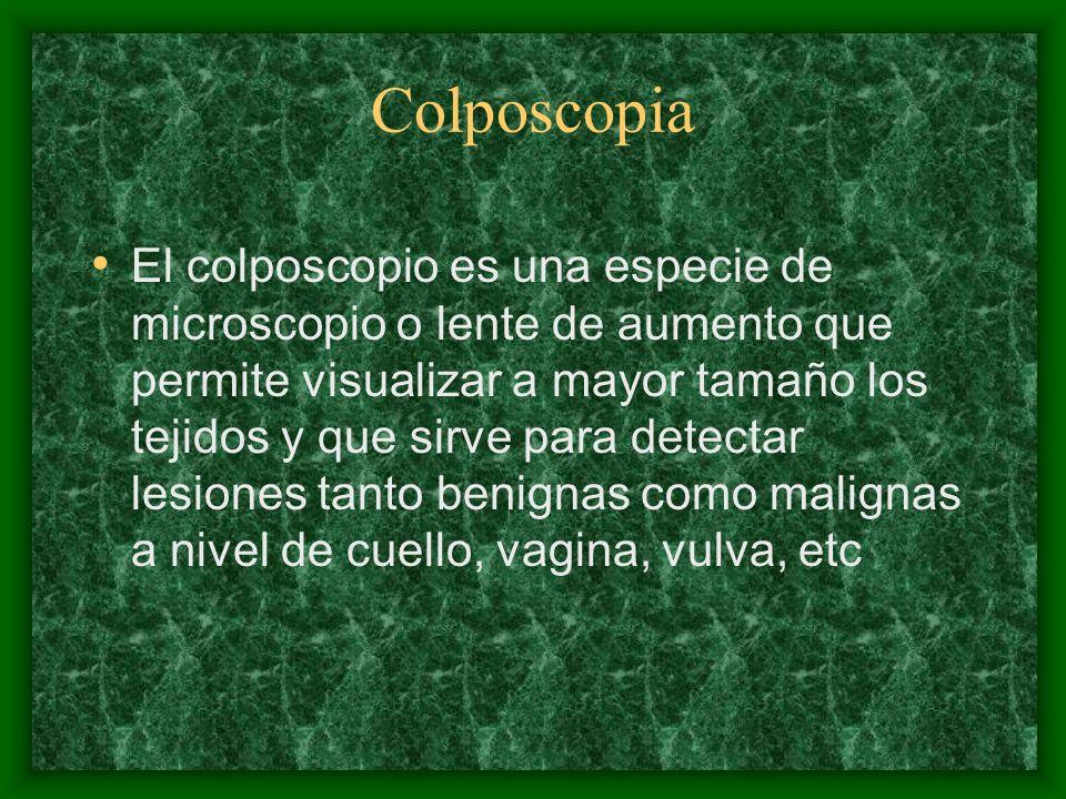 El colposcopio es una especie de microscopio o lente de aumento que permite visualizar a mayor tamaño los tejidos y que sirve para detectar lesiones t