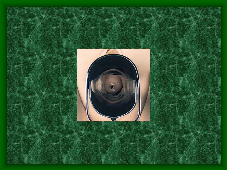 Exploraciones complementarias Colposcopia Papanicolau o citología vaginal Examen mamario –Ecografia –Mamografia Biopsia del cuello, utero, vagina y vulva Histerometría Punción de los fondos de saco
