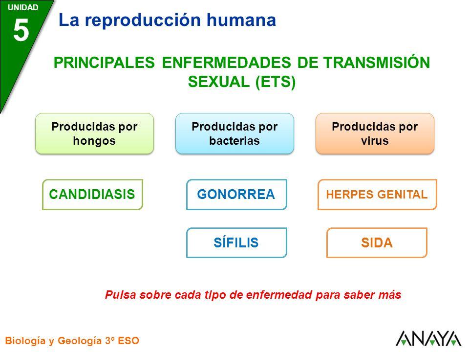 UNIDAD 5 La reproducción humana Biología y Geología 3º ESO PRINCIPALES ENFERMEDADES DE TRANSMISIÓN SEXUAL (ETS) Producidas por bacterias Producidas po