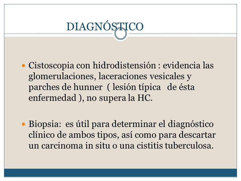 DIAGNÓSTICO Cistoscopia con hidrodistensión : evidencia las glomerulaciones, laceraciones vesicales y parches de hunner ( lesión típica de ésta enferm