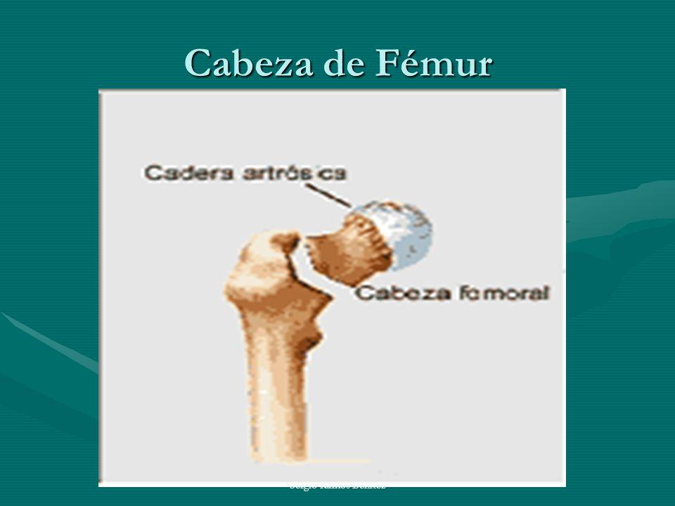 Sergio Ramos Benitez Cabeza de Fémur