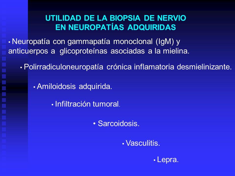 UTILIDAD DE LA BIOPSIA DE NERVIO EN NEUROPATÍAS ADQUIRIDAS Vasculitis. Sarcoidosis. Amiloidosis adquirida. Polirradiculoneuropatía crónica inflamatori