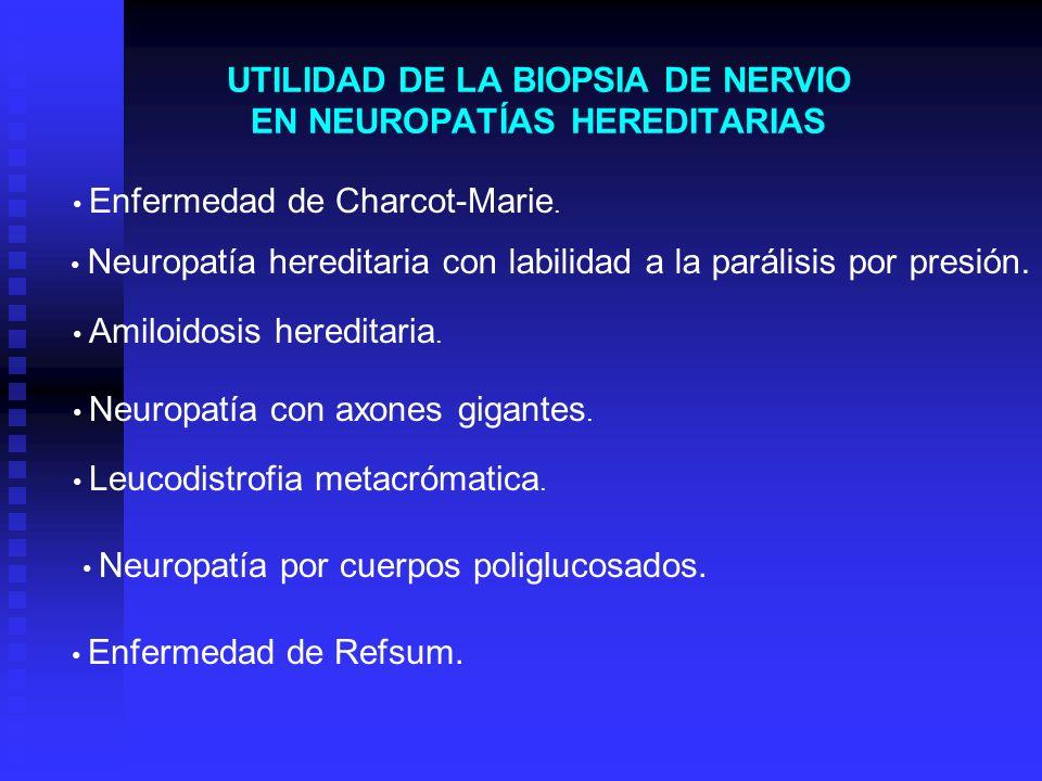 UTILIDAD DE LA BIOPSIA DE NERVIO EN NEUROPATÍAS HEREDITARIAS Enfermedad de Charcot-Marie. Neuropatía hereditaria con labilidad a la parálisis por pres